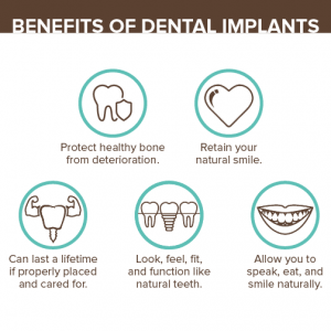 Burke dentist dental implants