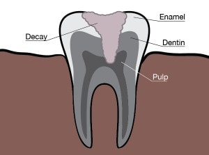 Burke Dentist Tooth Sensitivity