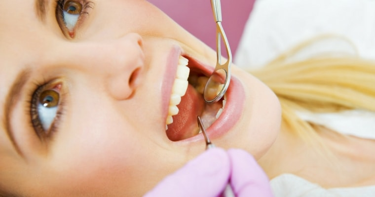 Your dentist can determine if you need to replace metal fillings
