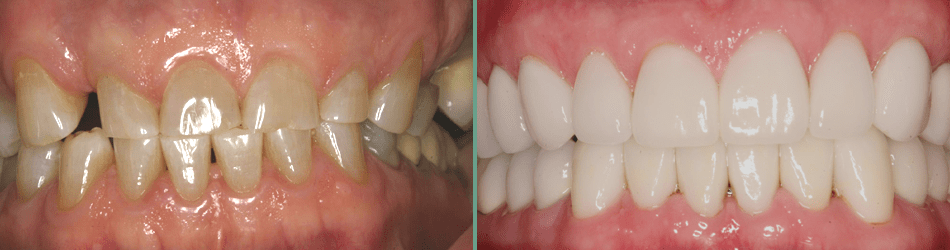 Actual full mouth rehabilitation case done by Dr. Alex McMillan in Burke, VA