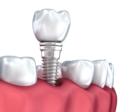 Single tooth option for dental implants