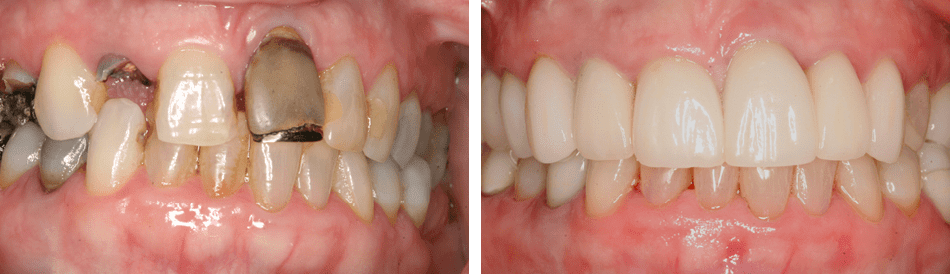 Smile Gallery photo from Dr. McMillan cosmetic dentist in northern Virginia
