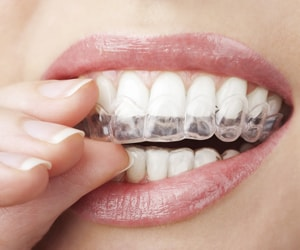 A patient putting on an Invisalign aligner