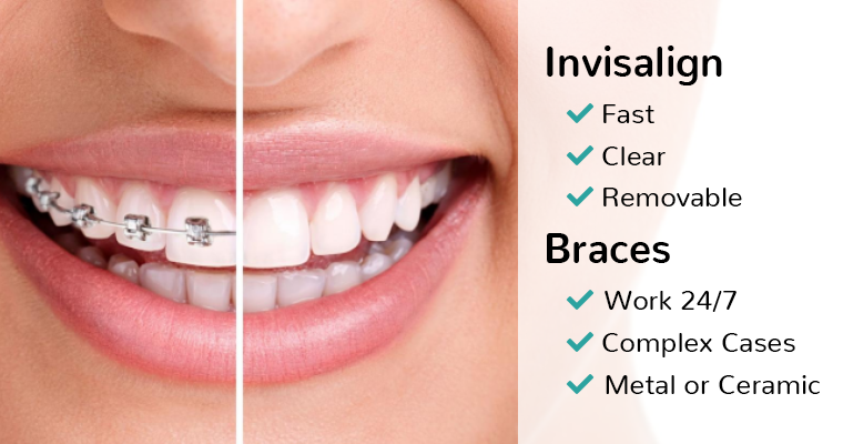 The pros and cons of Invisalign and braces
